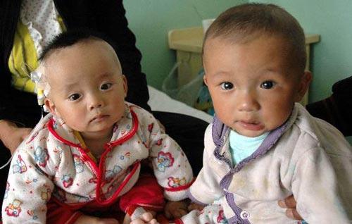 9月11日,一对来自甘肃岷县的同患泌尿结石的双胞胎在甘肃省兰州市中国人民解放军第一医院接受治疗 新华社记者 朱国亮摄