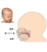 图解:小儿唇腭裂修复术