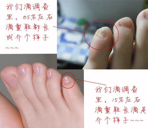人体实验室04-你的小脚趾有几片指甲?