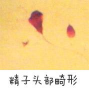 精子头部畸形