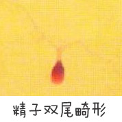 精子双尾畸形